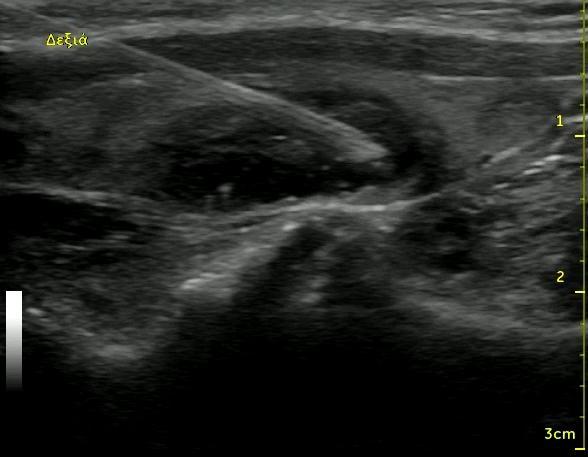 thyroid fna